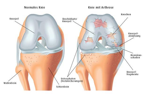 Kniearthrose - Gonarthrose | Hüfte & Knie | Orthozentrum ...
