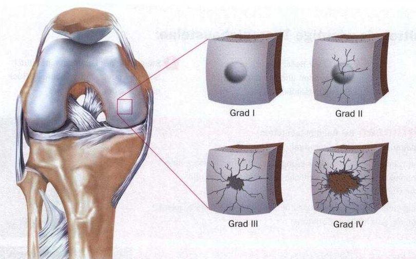 Kniespiegelung - Kniearthroskopie | Hüfte & Knie | Orthozentrum ...