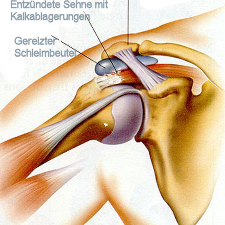 Tendinitis calcarea - Kalkschulter | Schulter, Ellbogen & Hand ...