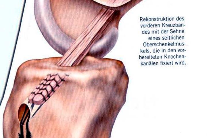 Kreuzbandriss | Hüfte & Knie | Orthozentrum - Orthopädische