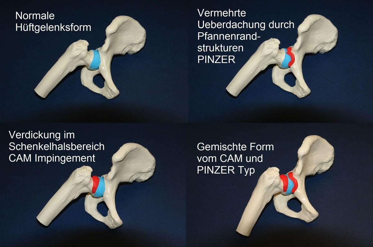 Tolle Hüftgelenk Typ Galerie - Menschliche Anatomie Bilder ...