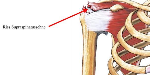 Schulter, Ellbogen & Hand   Orthozentrum - Orthopädische Chirurgie ...